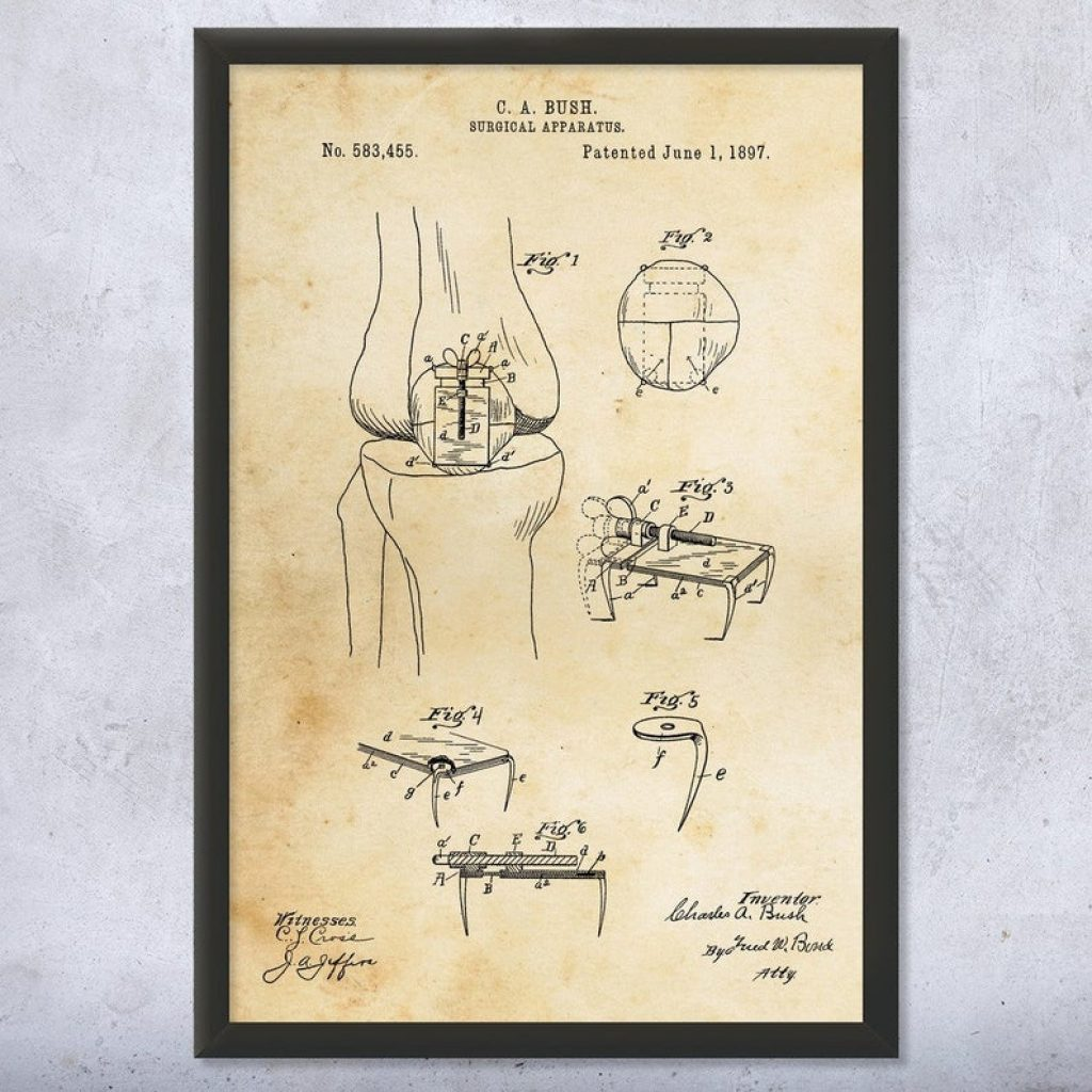 Framed Bone Screw Print for Gifts for Engineering Students by Gifter World